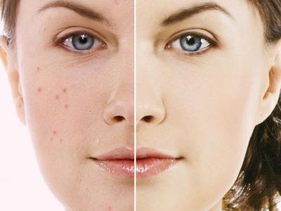 Acne Treatment Lexington and Georgetown KY